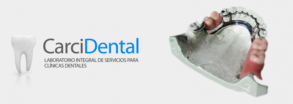 carcidental-potesis-parcial-removible